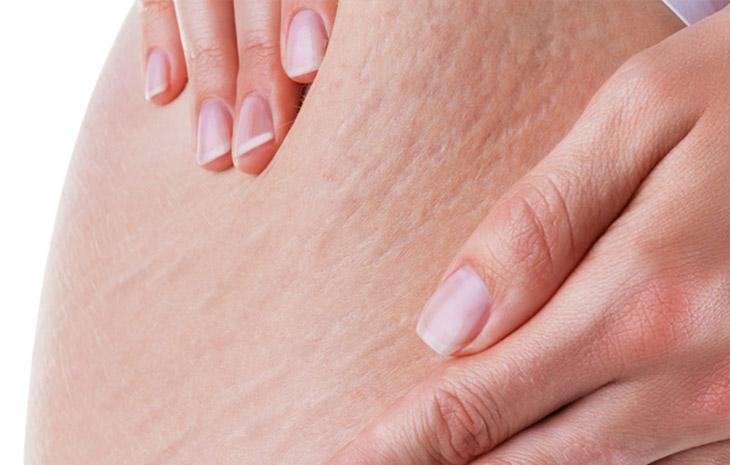 Thiếu hụt lượng Collagen cần thiết, gây đứt gãy các mô liên kết tế bào da, dẫn đến rạn da khi mang thai
