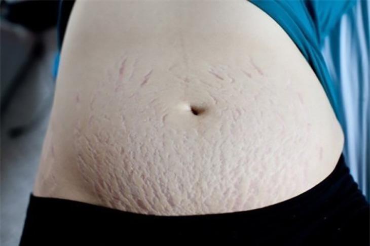 Những vết rạn chằng chịt này là minh chứng rõ ràng cho sự hy sinh và những vất vả trong suốt thai kỳ của người mẹ