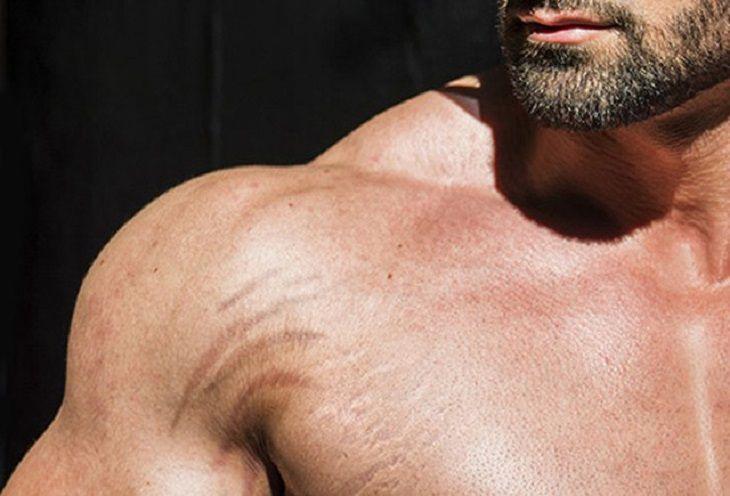 Rạn da ở nam giới khiến các quý ông mất tự tin