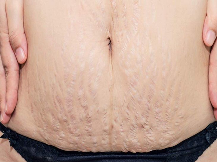 Rạn da sau sinh có chữa được không là thắc mắc của nhiều chị em