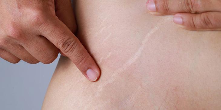 So với nam giới, rạn nứt da ở tuổi dậy thì gặp nhiều ở nữ giới hơn