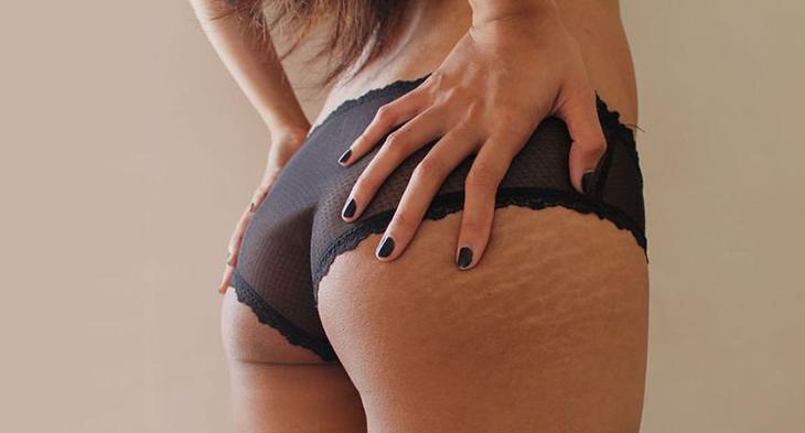 Mông, đùi và bụng là vị trí dễ bị rạn da nhất