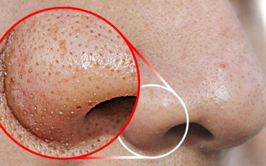 Mụn đầu đen là tình trạng da liễu phổ biến thường gặp