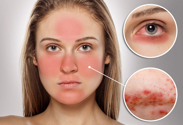 Serum trị thâm mụn cho da nhạy cảm vô cùng cần thiết cho làn da