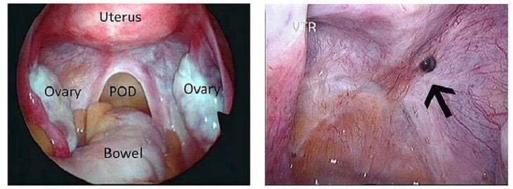 Hình ảnh lạc nội mạc tử cung trên siêu âm