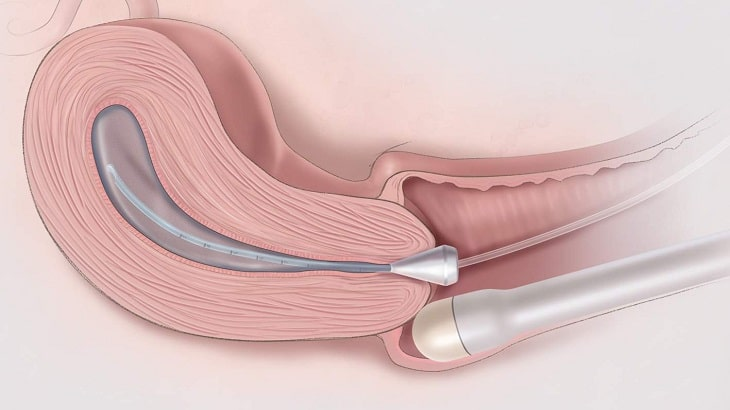 Siêu âm lạc nội mạc tử cung qua đầu dò