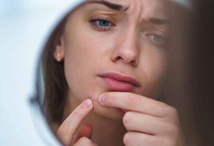 Stress có thể gây mụn nội tiết
