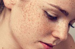 Nám da xuất hiện ảnh hưởng nặng nề đến thẩm mỹ và tấm lý của nhiều chị em