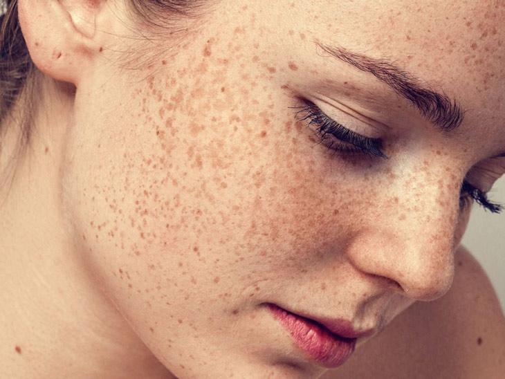 Tàn nhang có thể xuất hiện ở nhiều vị trí khác nhau trên khuôn mặt