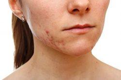Mụn thâm là vấn đề nan giải của làn da