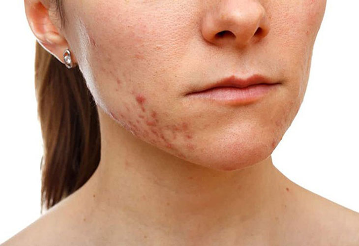 Thâm mụn - vấn đề nan giải của làn da