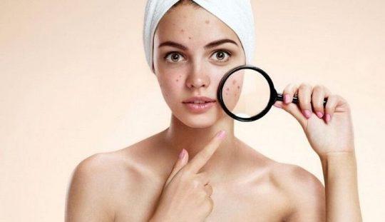 Những nốt mụn bọc thường gây đau đớn và để lại sẹo trên da