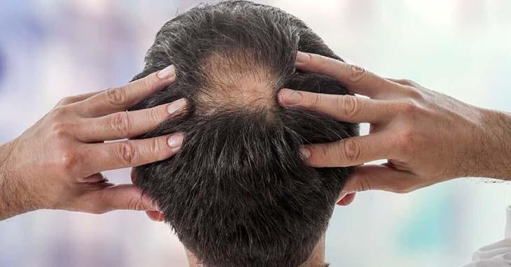 Các loại thuốc chống rụng tóc giảm sinh lý