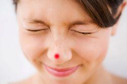 Tình trạng mụn bọc ở mũi có thể khiến bạn cảm thấy khó chịu, mệt mỏi