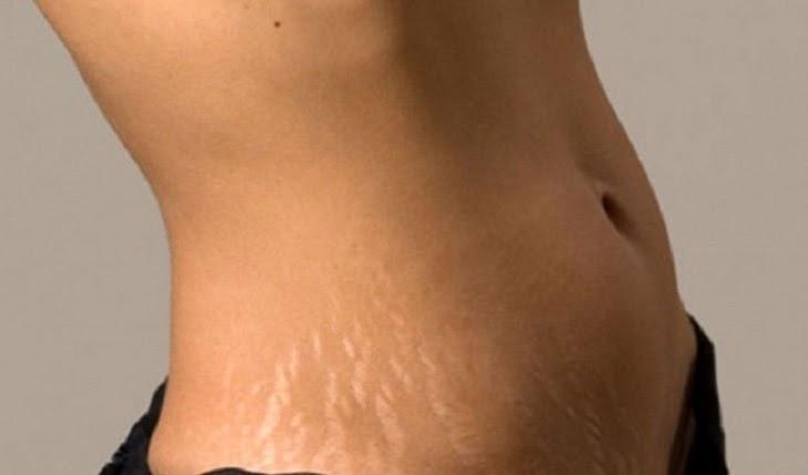 Vết rạn da xuất hiện vùng bụng, hông