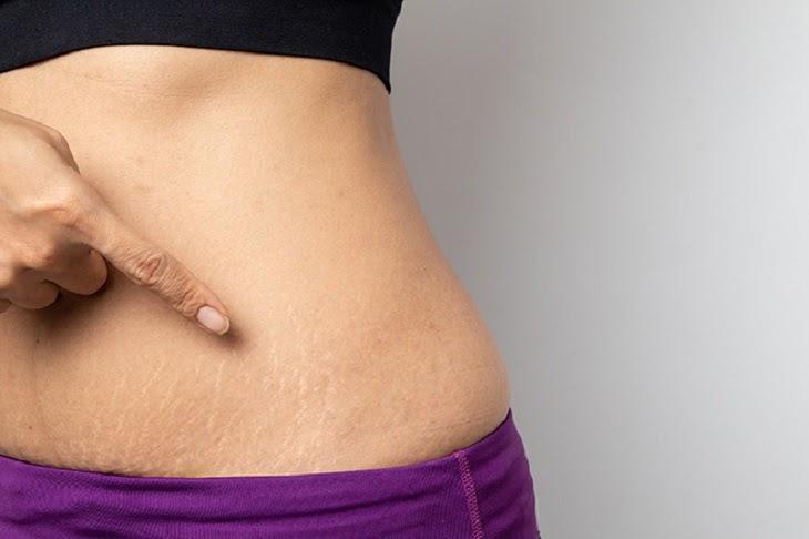 Vùng da bụng bị rạn có màu trắng
