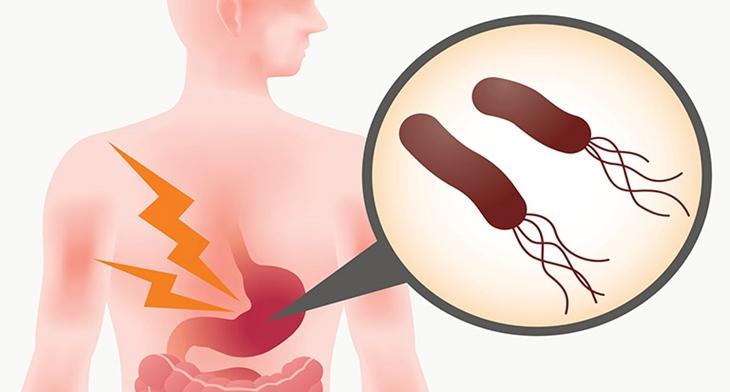 Hiện nay tỷ lệ vi khuẩn HP kháng thuốc đang gia tăng đến mức báo động