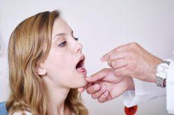 Viêm amidan mãn tính có nên cắt hay không?