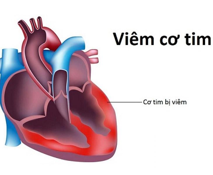 Viêm amidan mãn tính có nguy hiểm không? Viêm amidan mãn tính có thể gây biến chứng viêm cơ tim