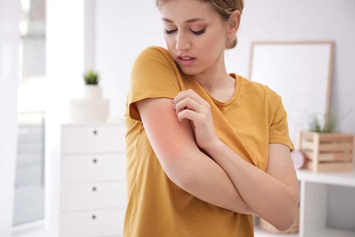 Viêm da thường xuyên tái phát, ngứa ngáy, khiến người bệnh mất tự ti về những khuyết điểm trên làn da