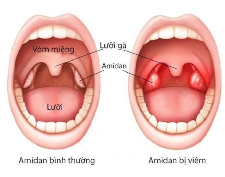 Ở người viêm họng cấp, Amidan bị viêm sưng đỏ, phù nề