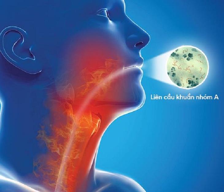 Nhiễm khuẩn họng liên tục là nguyên nhân gây viêm họng mãn tính quá phát