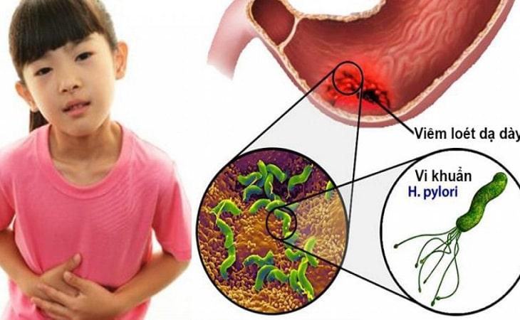 Viêm loét dạ dày ở trẻ em gây nhiều biến chứng nguy hiểm, cha mẹ tuyệt đối không chủ quan