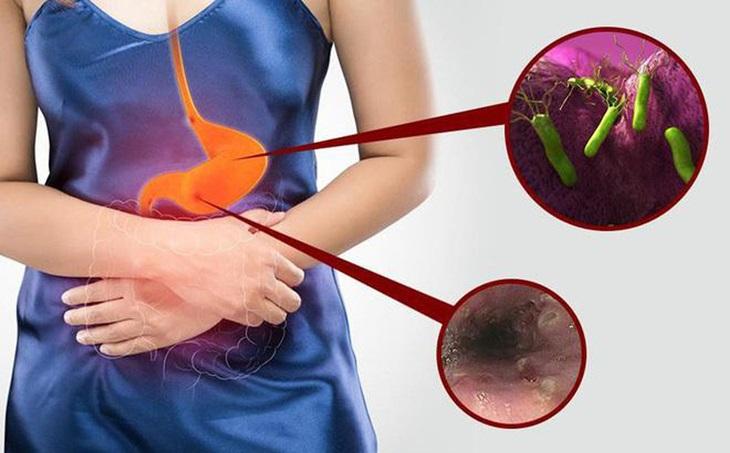 Tìm hiểu viêm loét dạ dày tá tràng có nguy hiểm không