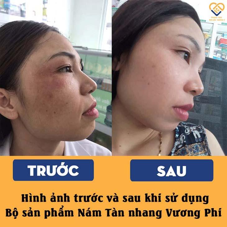 vuong phi CHR