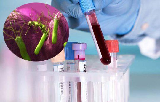 Tìm hiểu xét nghiệm máu HP có chính xác không