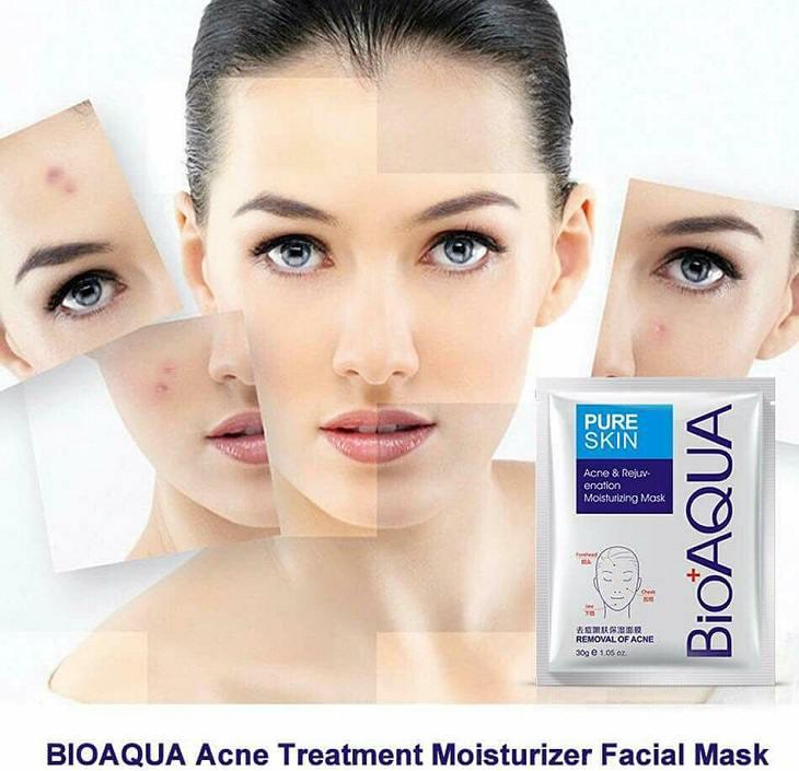 mặt nạ trị mụn bioaqua pure skin review