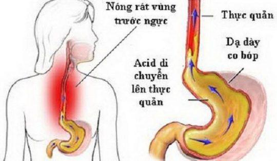 Trào ngược dạ dày độ A là tình trạng trào ngược ở mức nhẹ với một vài tổn thương nhỏ hơn 5mm ở niêm mạc thực quản