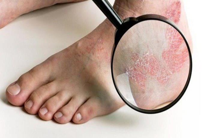 Hắc lào ở chân là tình trạng thường gặp, gây khó chịu và ảnh hưởng đến việc di chuyển của người bệnh