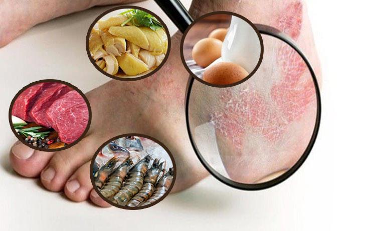 Trong quá trình điều trị, bạn nên kiêng một số thực phẩm để cải thiện hắc lào ở chân tốt hơn