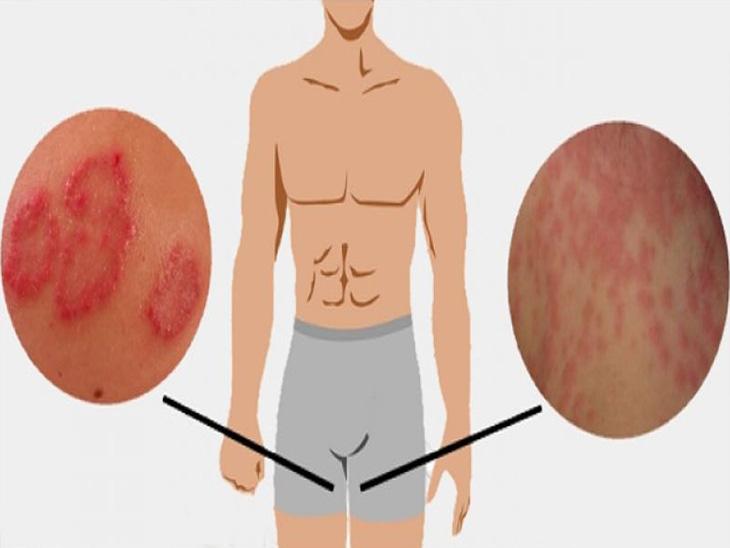 Hắc lào ở háng gây khó chịu và dễ lan rộng, đặc biệt thường xuất hiện nhiều ở nam giới