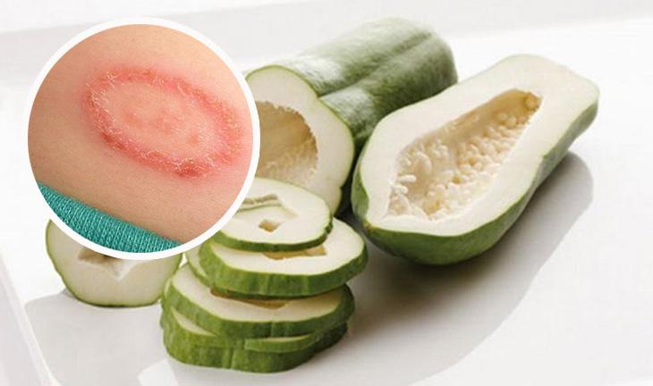 Đu đủ xanh chứa nhiều thành phần ức chế tế bào nấm, trị hắc lào ở háng tại nhà
