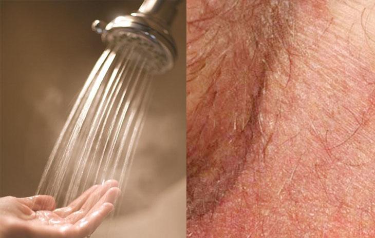 Rửa vùng da bị hắc lào ở háng với nước ấm giúp người bệnh dễ chịu hơn