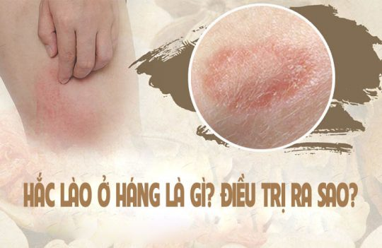 hac lao o hang thumb