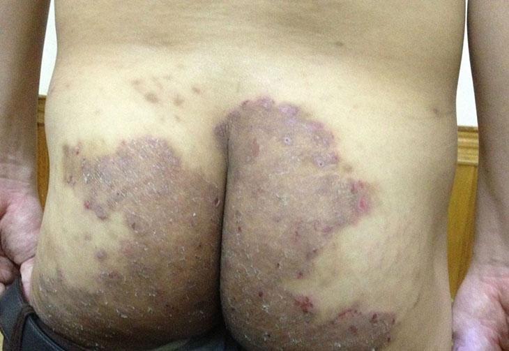 Tình trạng hắc lào ở mông có thể lan rộng nhanh chóng