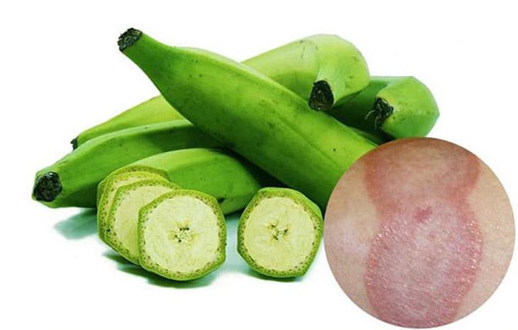 Sử dụng chuối xanh có thể khắc phục ngứa, hạn chế sự lây lan của nấm trên da