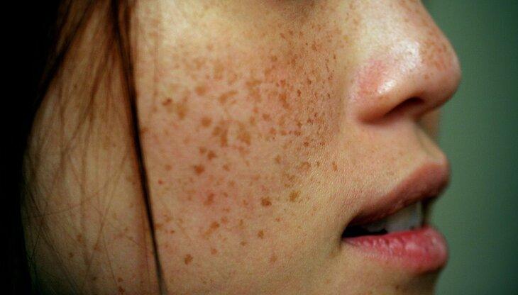 Tàn nhang là vấn đề phổ biến với chị em phụ nữ ở độ tuổi da bắt đầu lão hóa