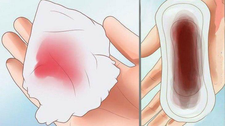 Khí hư ra màu nâu nhạt có lẫn màu hồng là biểu hiện của bệnh viêm nội mạc tử cung
