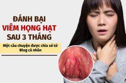 Chia sẻ kinh nghiệm chữa viêm họng hạt tại trung tâm đông y việt nam