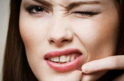 Mụn ẩn quanh miệng chữa như thế nào?