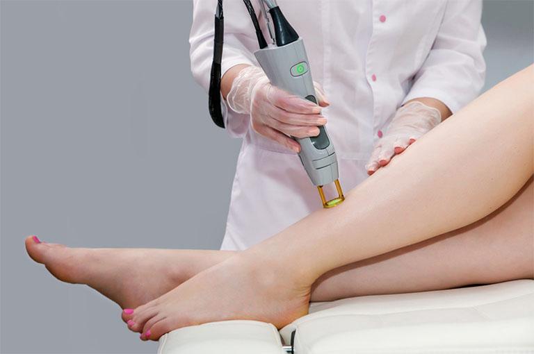 Phương pháp trị viêm nang lông bằng laser
