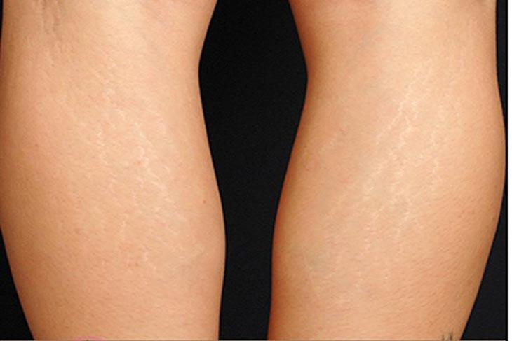 Vết rạn da ở bắp chân, đầu gối là dễ nhận biết nhất với những đường vết rạn trên da