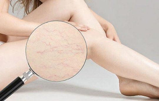 Rạn da chân rất dễ nhận thấy và nam hay nữ cũng đều có thể bị