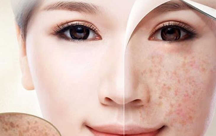 Thuốc chấm tàn nhang giúp lột bỏ lớp da bị tàn nhang bên ngoài nhanh chóng