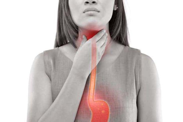 Trào ngược họng thanh quản là tình trạng dịch vị dạ dày trào ngược đi vào vùng họng và thanh quản, gây ra những tổn thương và viêm nhiễm cho các cơ quan này