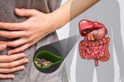 Trào ngược dịch mật là bệnh lý xảy ra khi van môn vị hoạt động không hiệu quả, để cho dịch mật cũng thức ăn trào ngược lên dạ dày